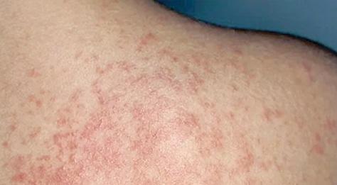 Rash Treatment Dermatologist Orange County Mission Viejo